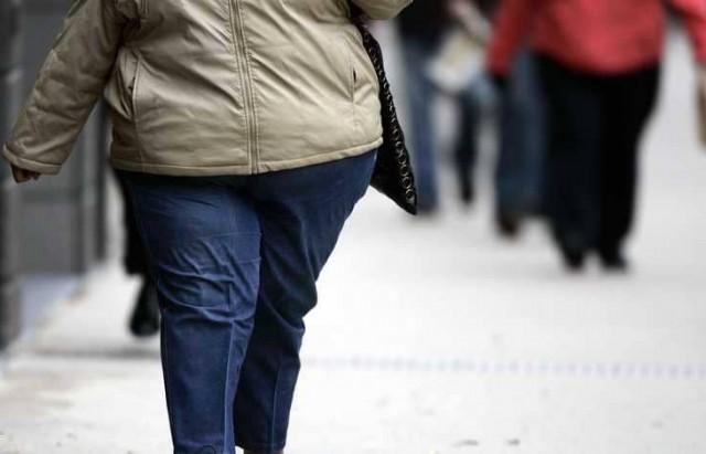 البدانة obesite