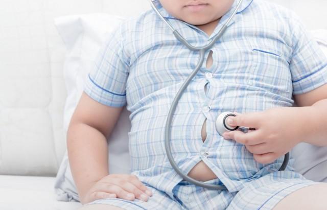 السمنة تزيد خطر إصابة الأطفال بالتهاب المفاصل العظمي
