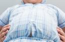 السمنة للأطفال obesite enfant