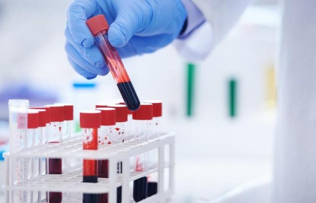في سابقة من نوعها تحليل دم يكشف الإصابة بسرطان الثدي