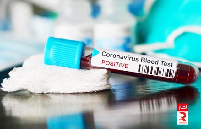 test_coronavirus_covid_19_تحاليل كورونا كوفيد_